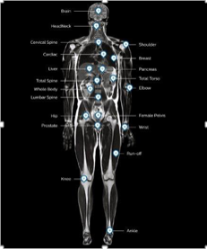 MR body map fieldstrength