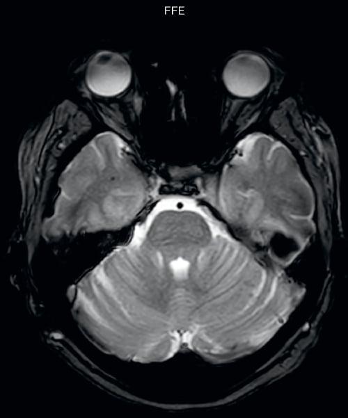 Brain MRI protocols upgraded at UVM | Philips Healthcare